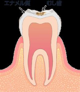 C1 エナメル質内のむし歯