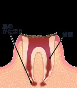 C4 歯質が失われたむし歯